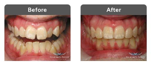 six-month-smiles-example-1